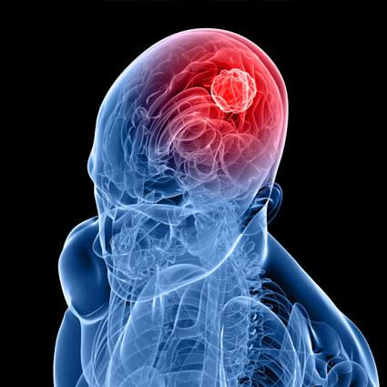 Hijama marseille traitement maux tete céphalée migraine
